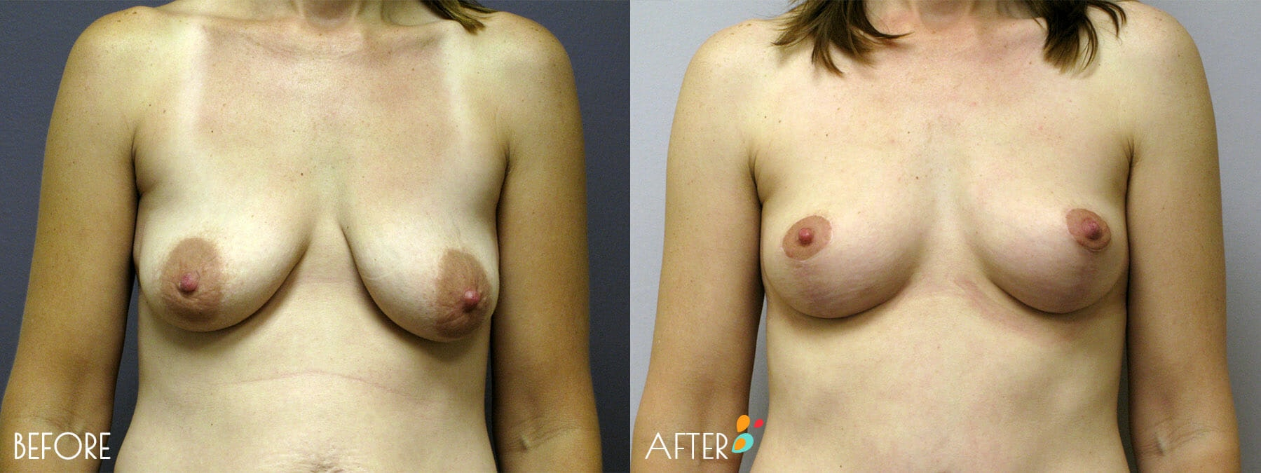 Breast Lift Patient 01, Front