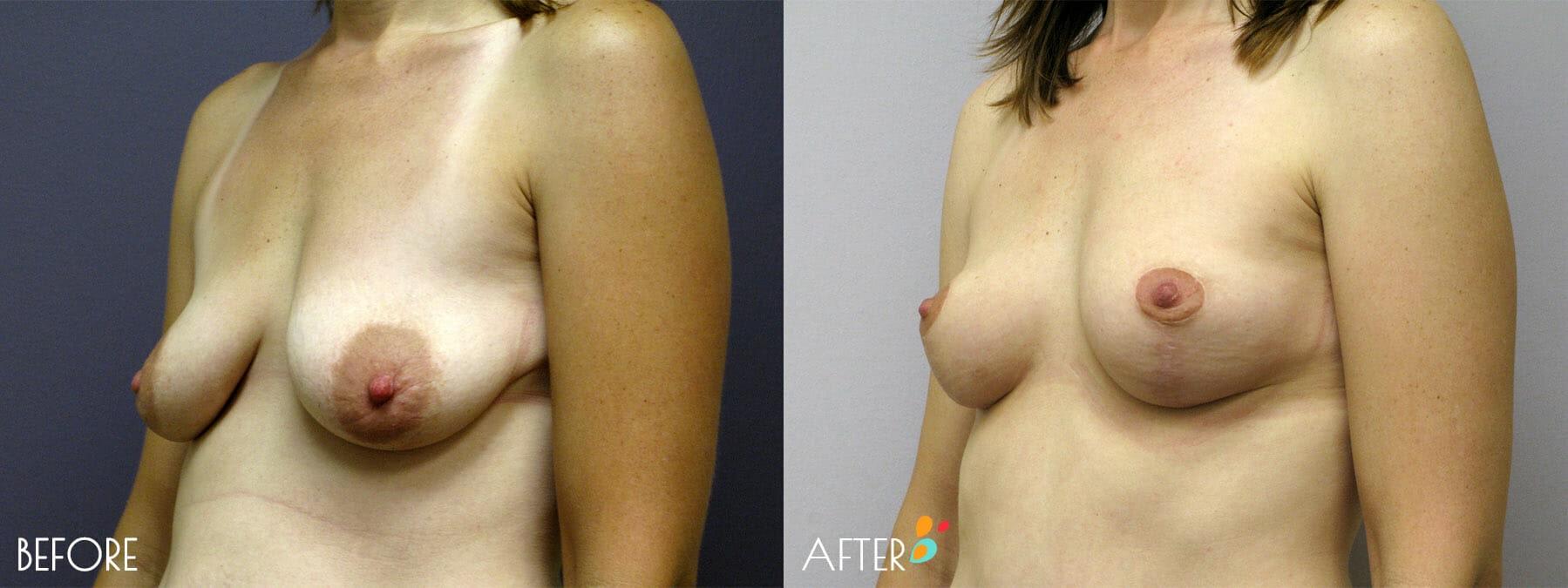 Breast Lift Patient 01, Quarter