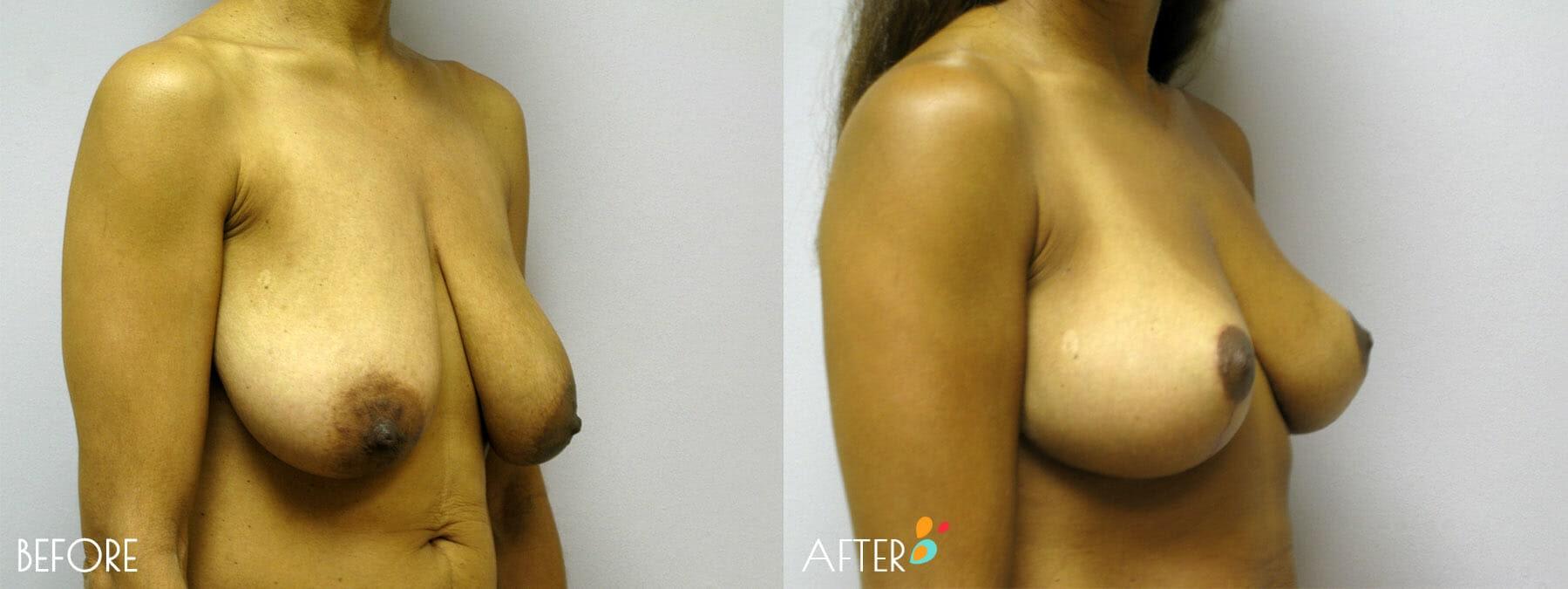 Breast Lift Patient 02, Quarter