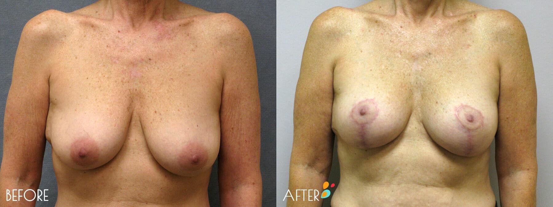 Breast Lift Patient 03,  Front
