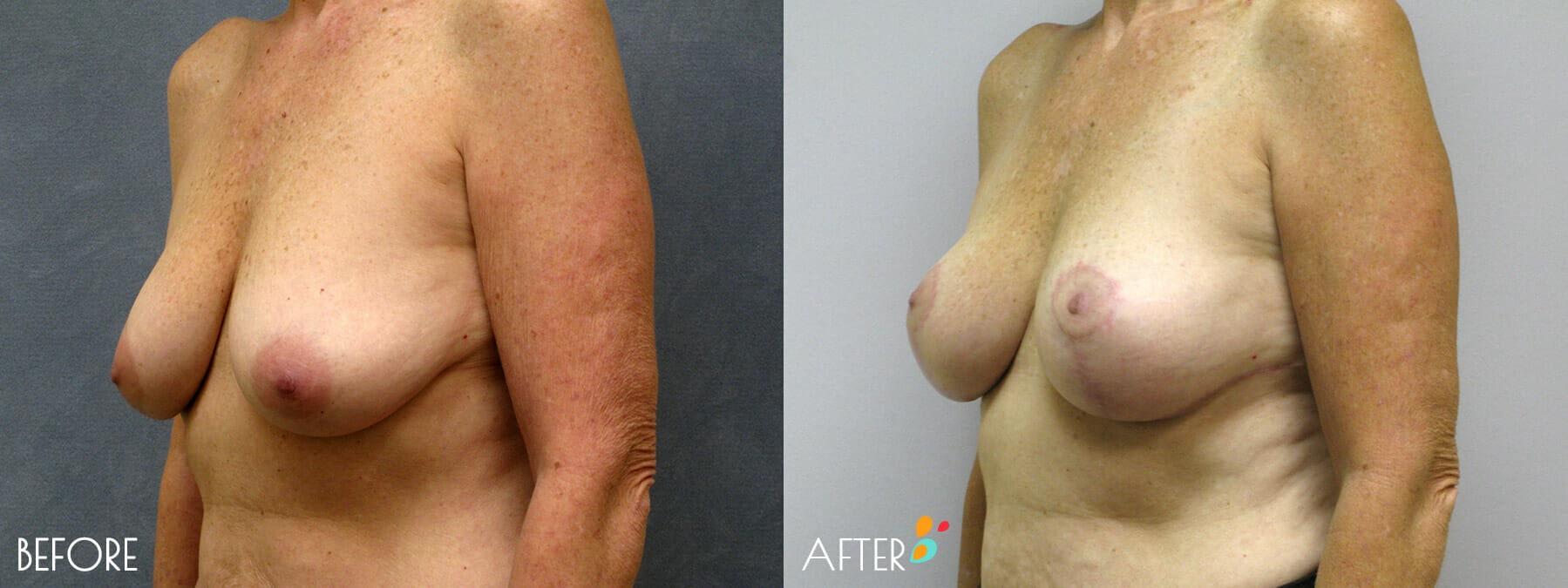 Breast Lift Patient 03, Quarter