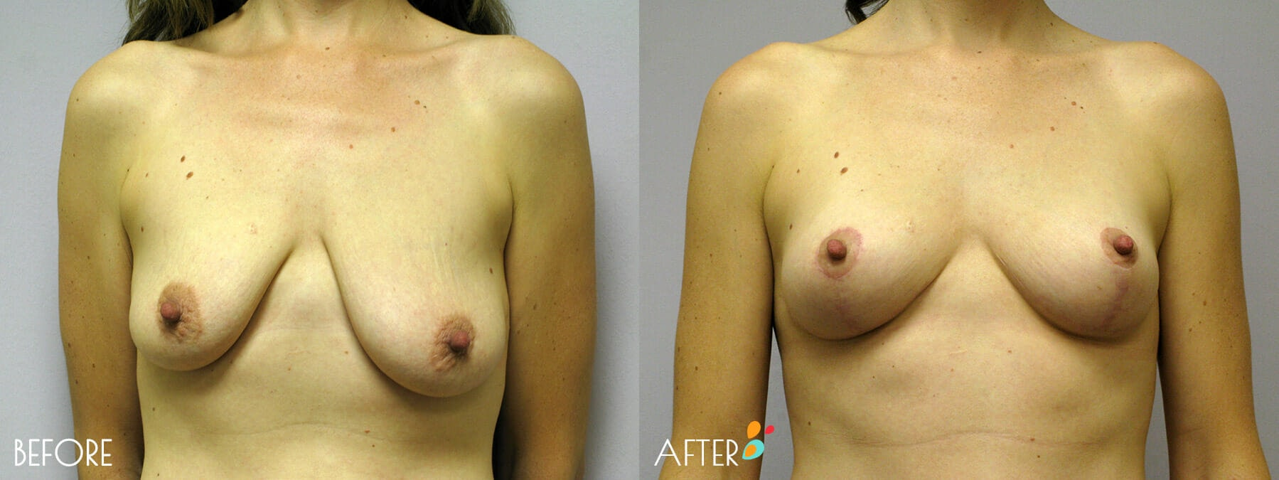 Breast Lift Patient 09, Front