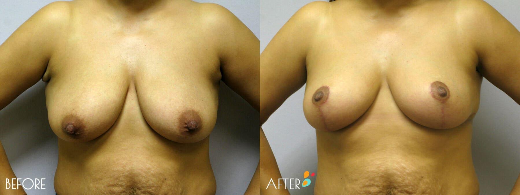 Breast Lift Patient 11, Front