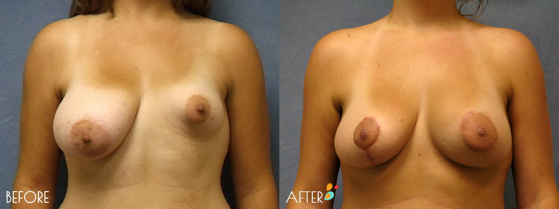 Breast Reconstruction Patient 01, Front