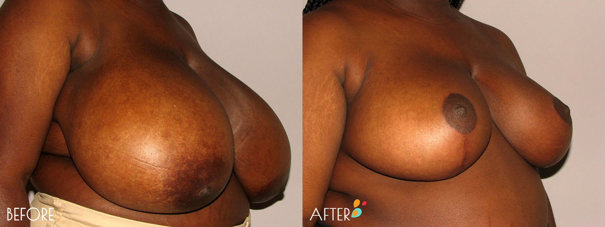 Breast-Reduction-Plastic-Surgery-Client-9-3quarter-Dallas-Plano
