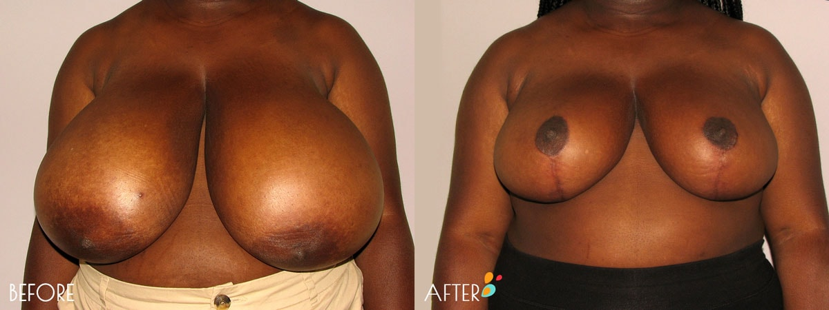 Breast-Reduction-Plastic-Surgery-Client-9-Front-Dallas-Plano