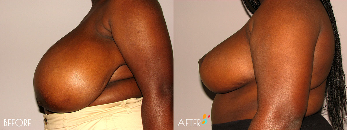 Breast-Reduction-Plastic-Surgery-Client-9-Side-Dallas-Plano