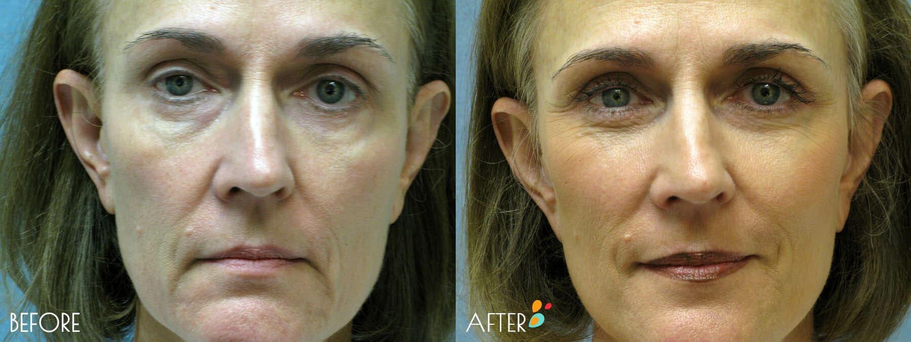 Face Lift Patient 05, Closeup
