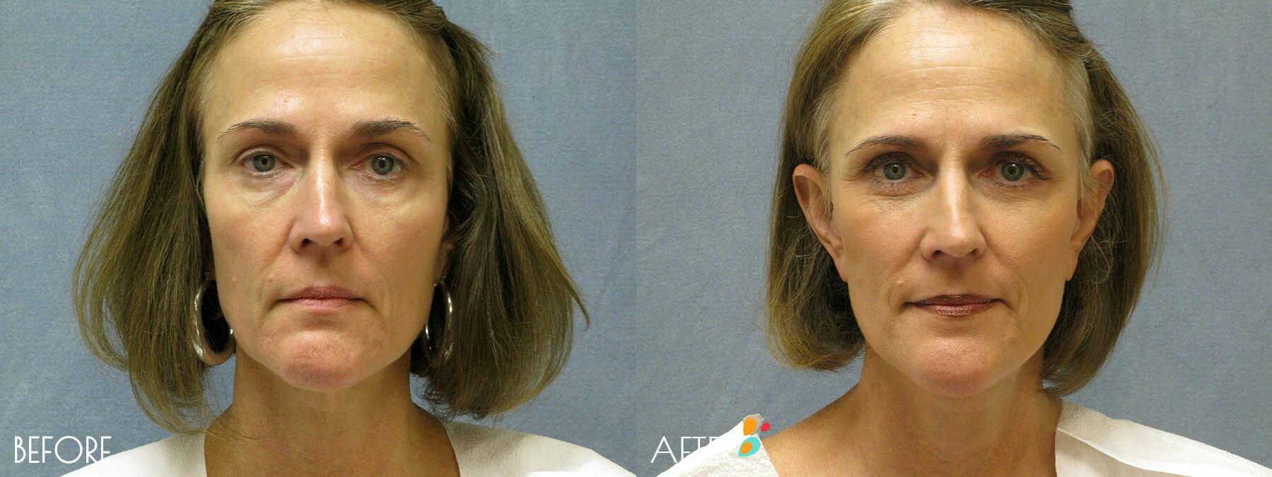 Face Lift Patient 05, Front