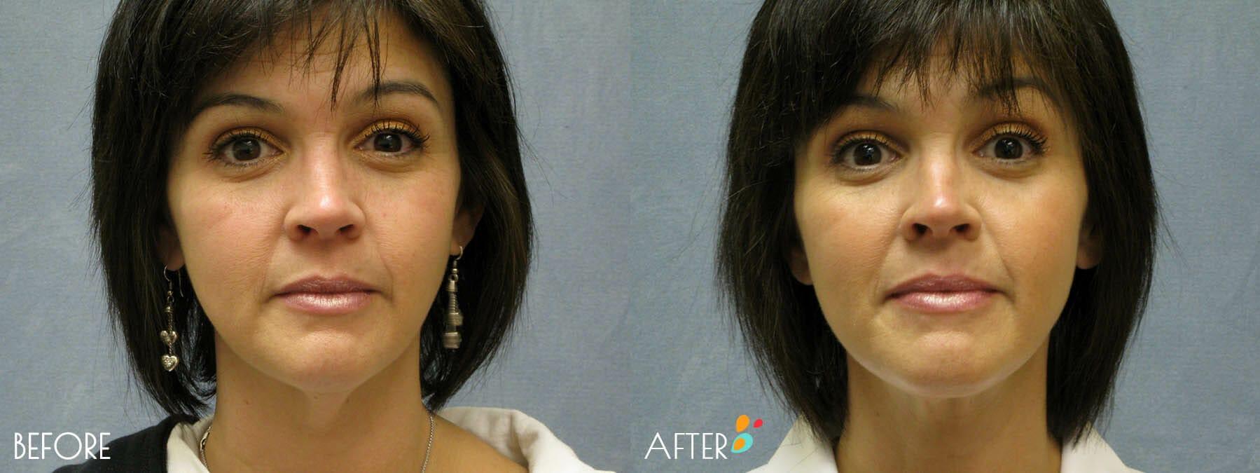 Face Lift Patient 06, Front