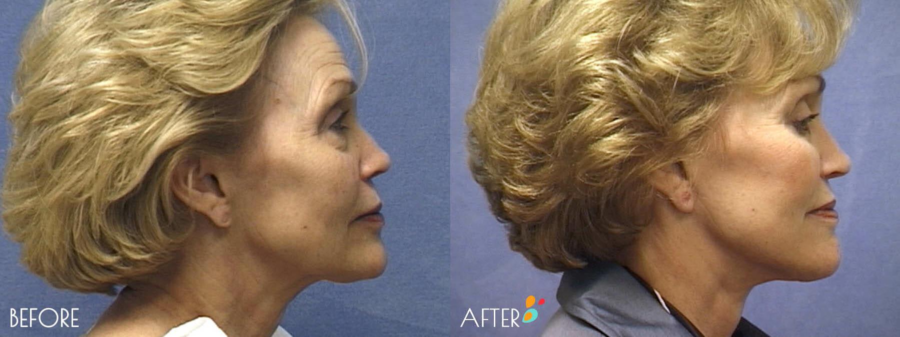 Face Lift Patient 07, Side