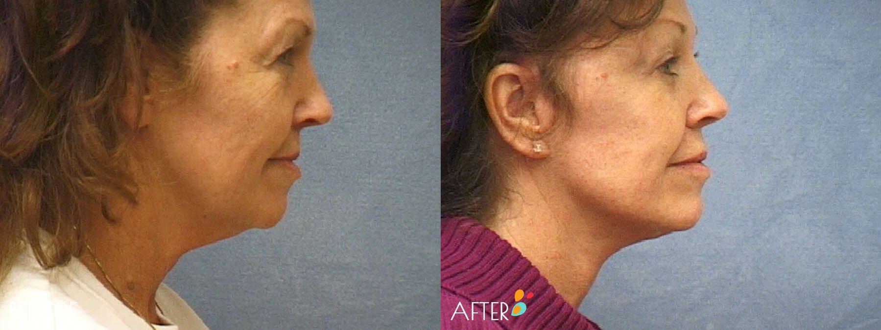 Face Lift Patient 08, Side