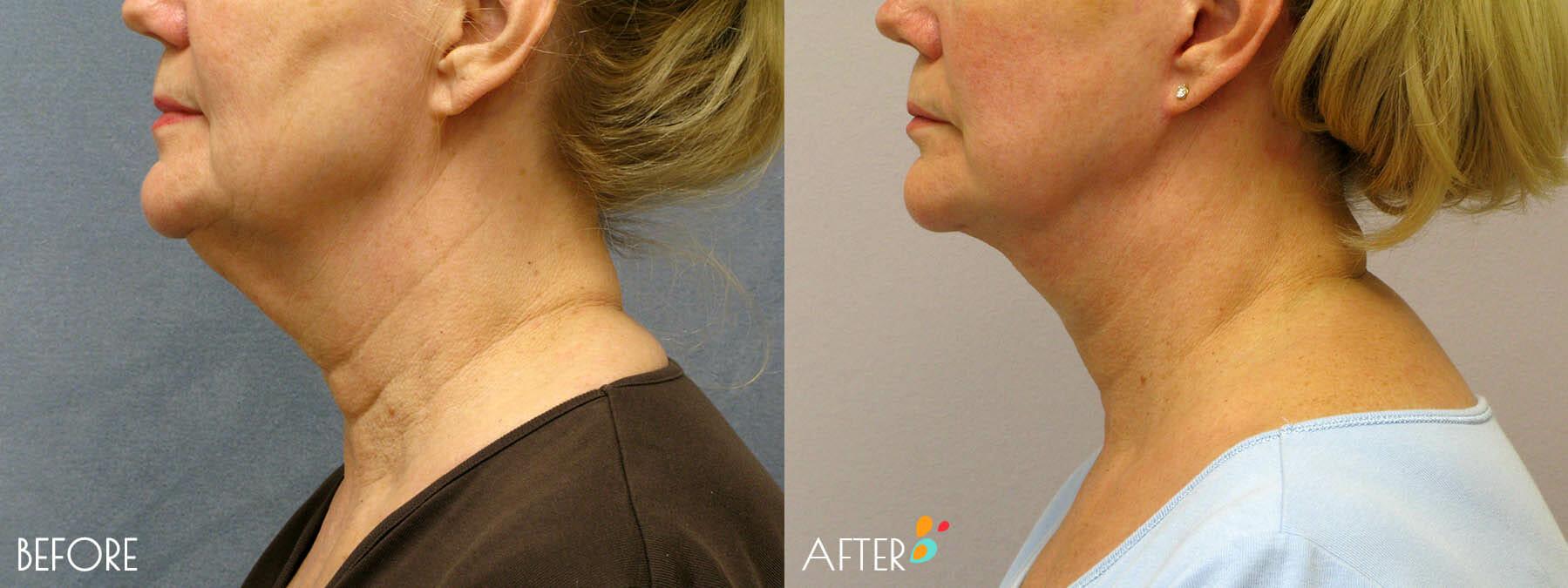 Face Lift Patient 09, Side