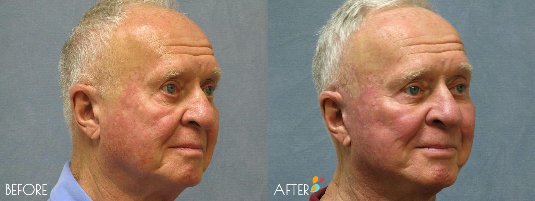 Face Lift Patient 11, Quarter