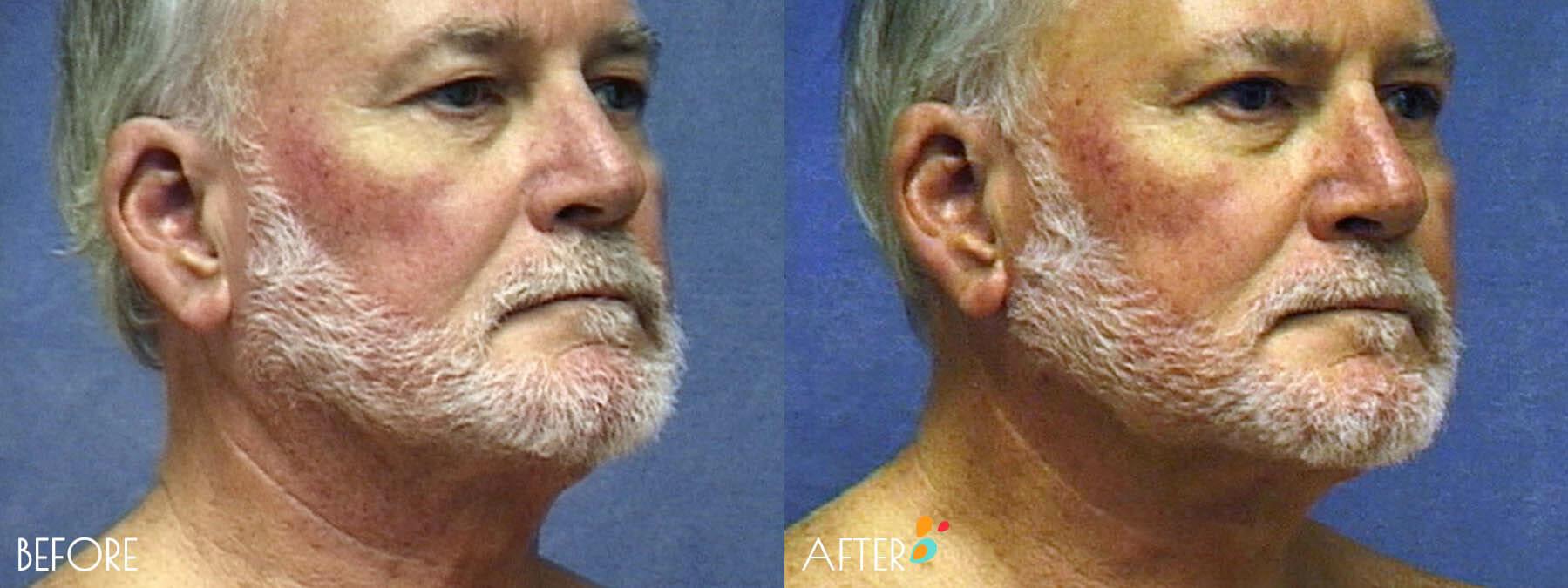 Face Lift Patient 12, Quarter 2