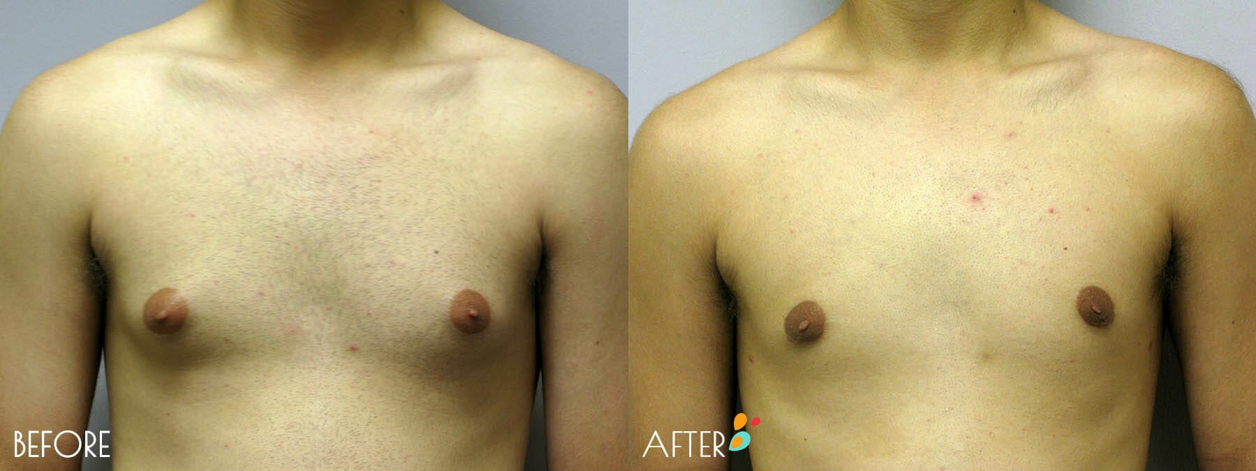 Gynecomastia Correction Patient 05, Front