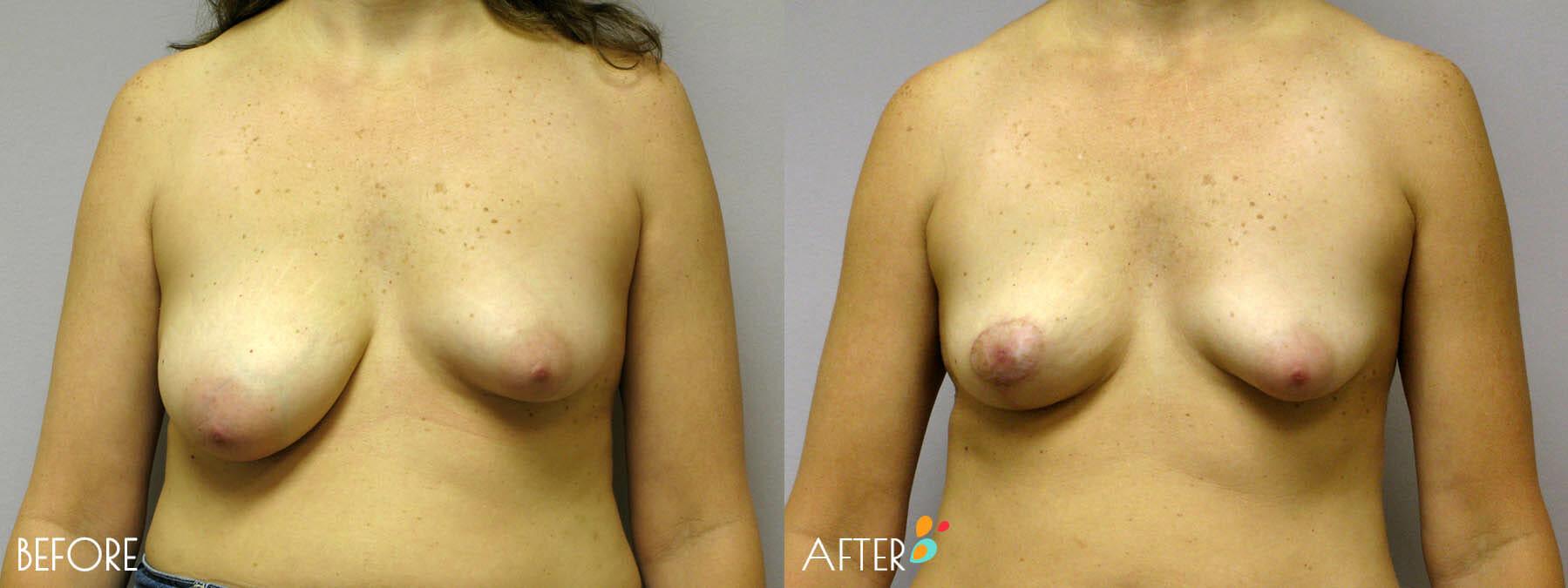 Breast Lift Patient 04, Front