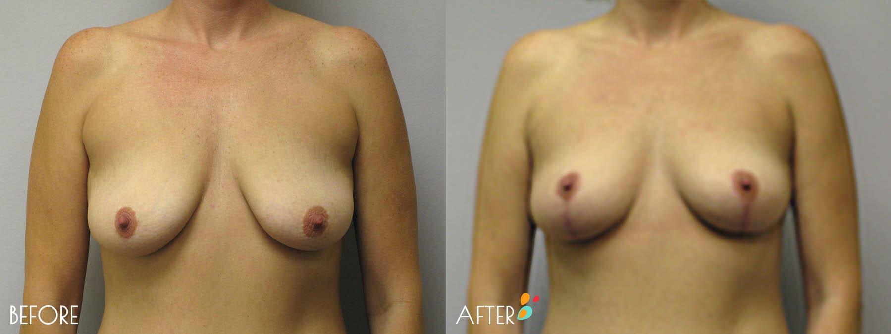 Breast Lift Patient 05, Front