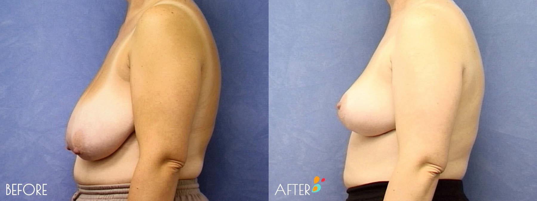 Breast Lift Patient 06, Side