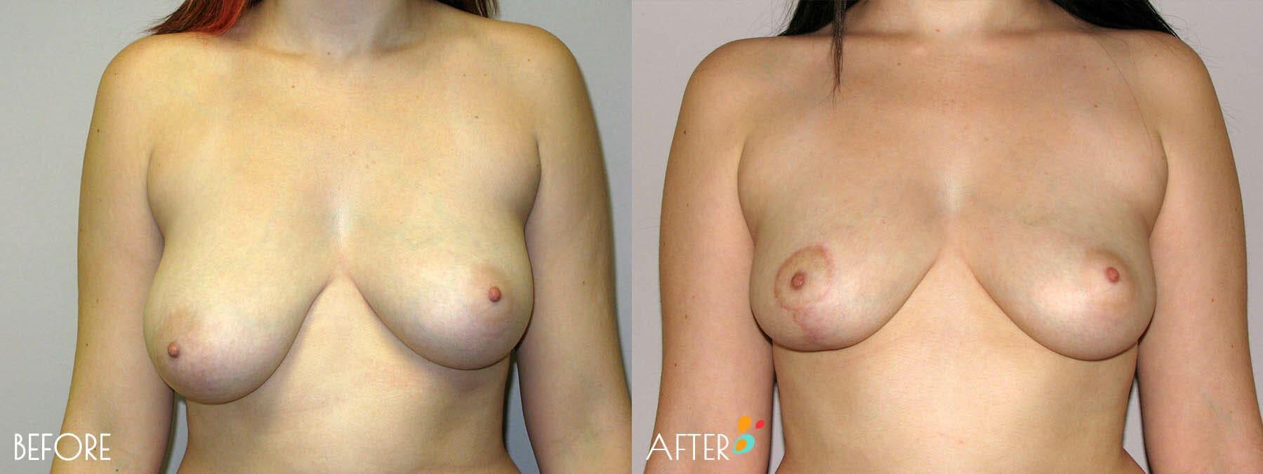 Breast Lift Patient 08, Front