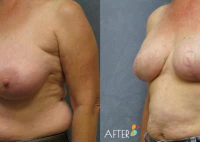 breast reconstruction surgery dallas plano patient 3 quarter