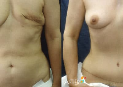 breast reconstruction surgery dallas plano patient 04 front