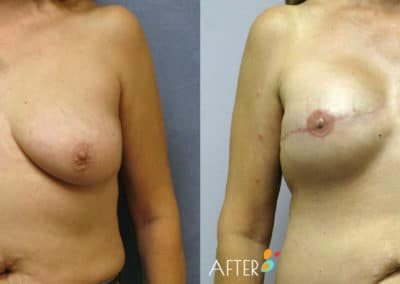 breast reconstruction surgery dallas plano patient 5 front
