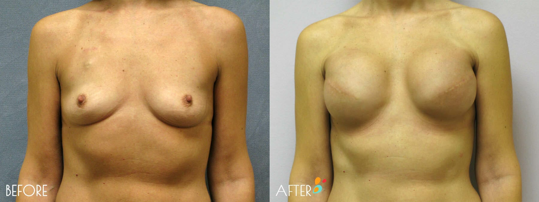 Breast Reconstruction Patient 02, Front