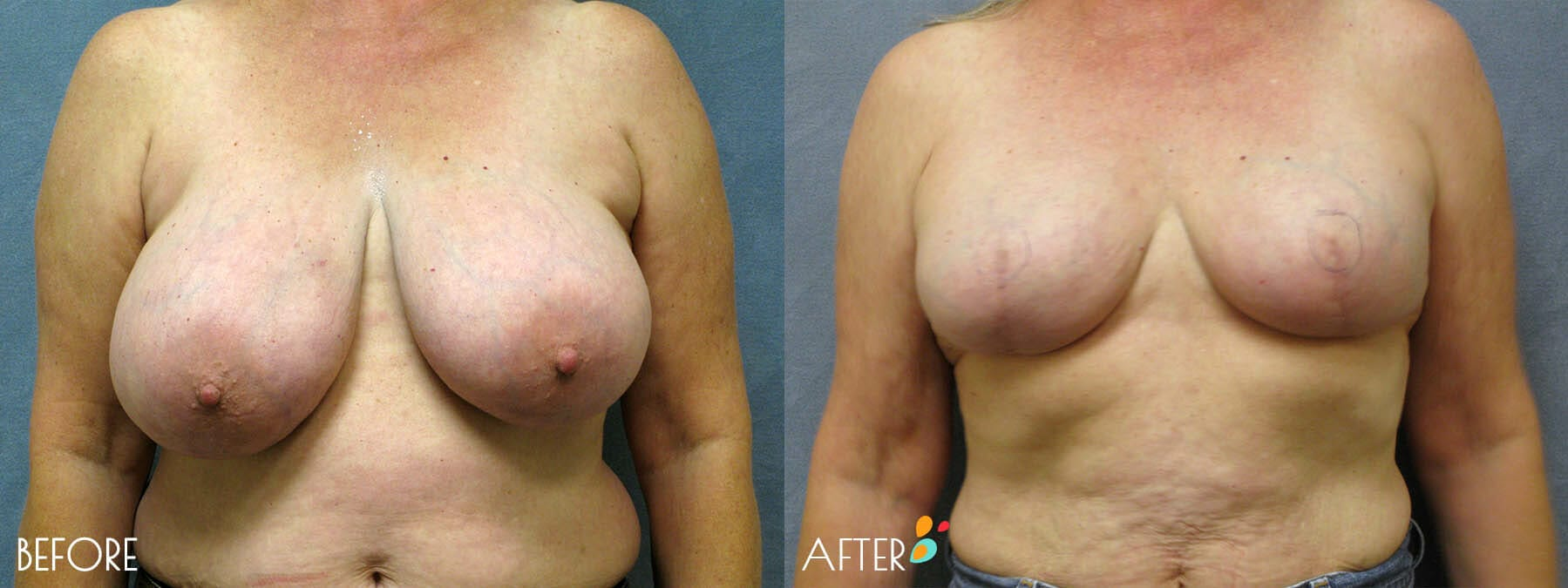 Breast Reconstruction Patient 03, Front
