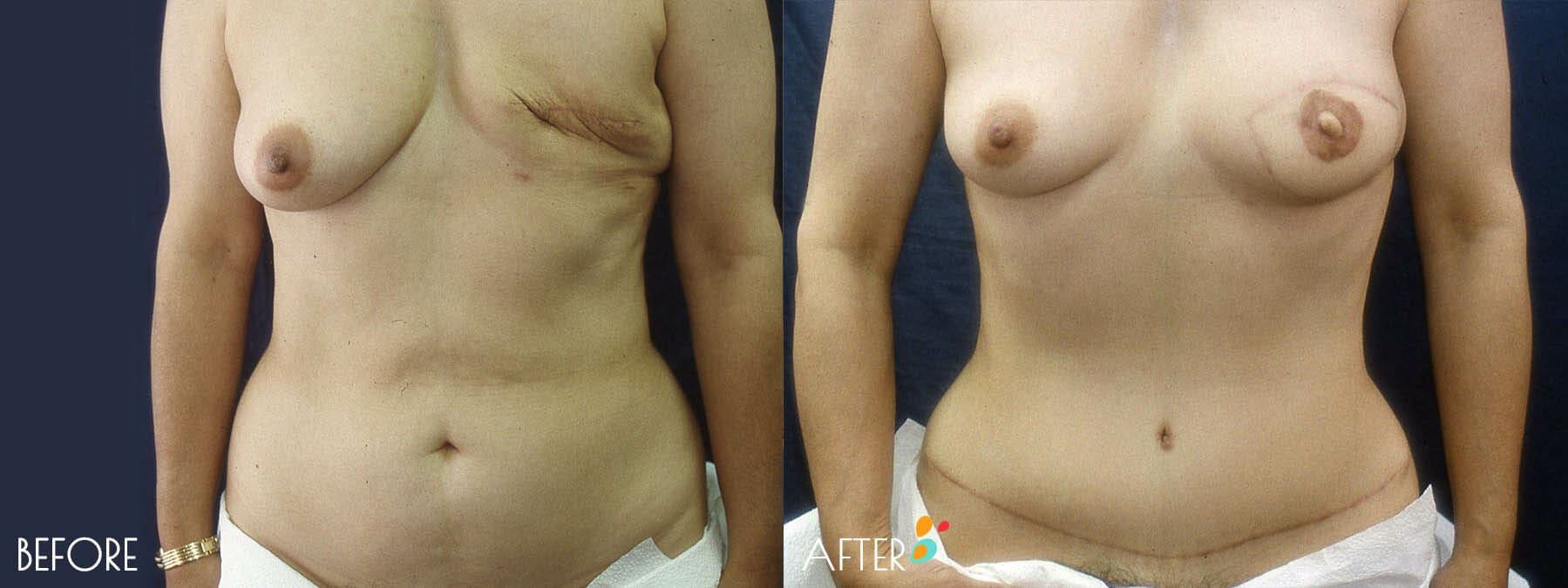 Breast Reconstruction Patient 04, Front