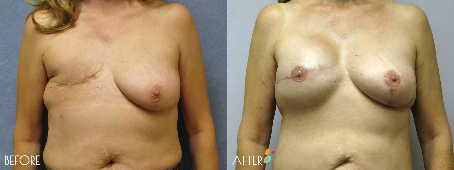 Breast Reconstruction Patient 05, Front