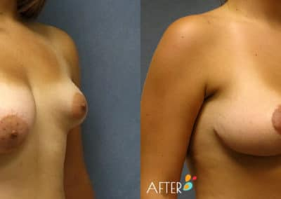 Breast Reconstruction Patient 1, Quarter