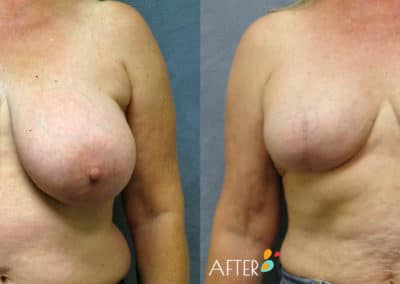 breast reconstruction patient 3, front
